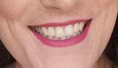 belení zubu brilliantcoco zkušenosti