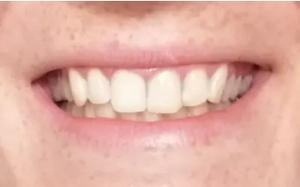bělení zubů výsledky Daynight